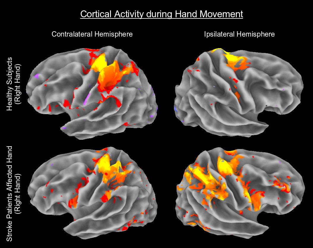 neuromarketing_brain_activity